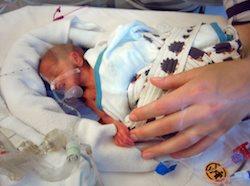 Prematur födsel