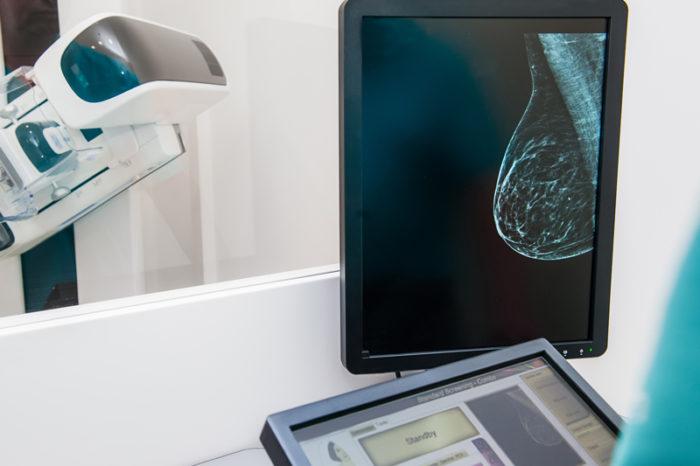 Bild av bröst under pågående mammografi.