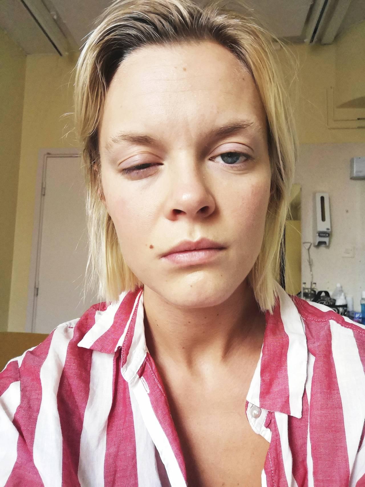 Matilda på sjukhuset med hängigt öga