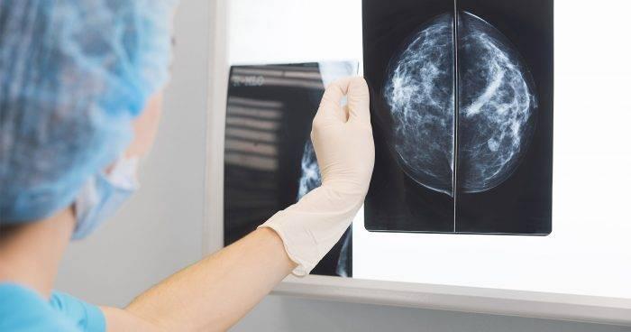 Röntgenbild på bröst efter en mammografiundersökning