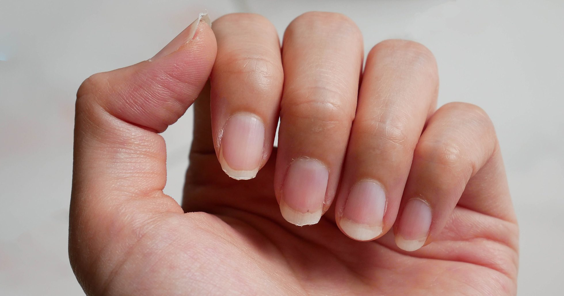 vita streck på naglarna