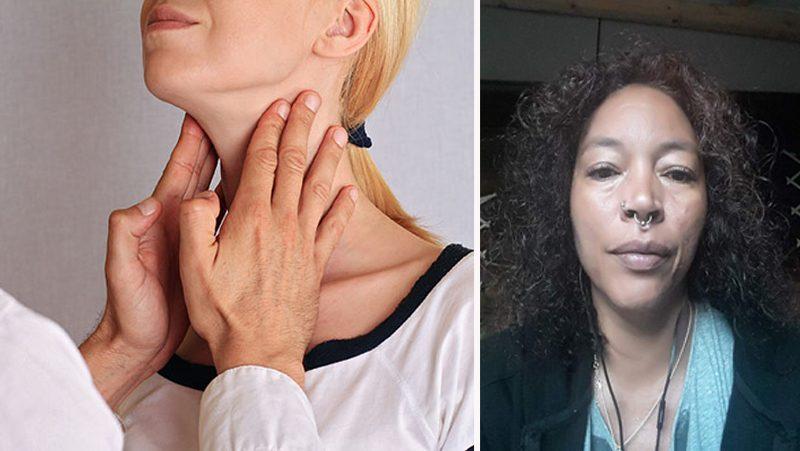 Jennifers långa kamp mot sköldkörtelsjukdomen Graves